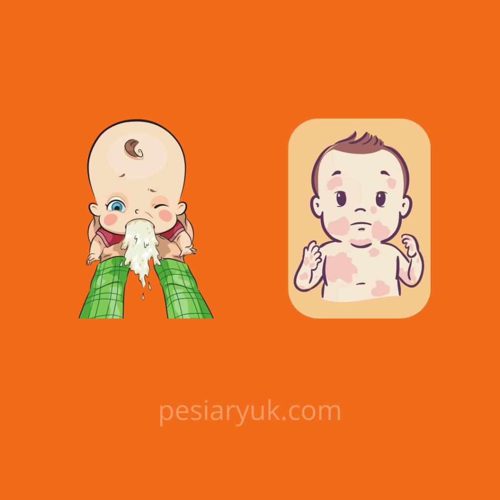 Muntah dan Ruam Tanda Bayi Tidak Cocok Sufor
